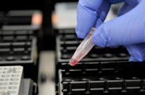 Вспышку инфекции в Европе объяснили секретными испытаниями США